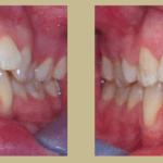 Orthodontics at Cornerhouse Dental