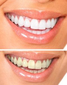 Whitening. Dental care. healthy woman white teeth.